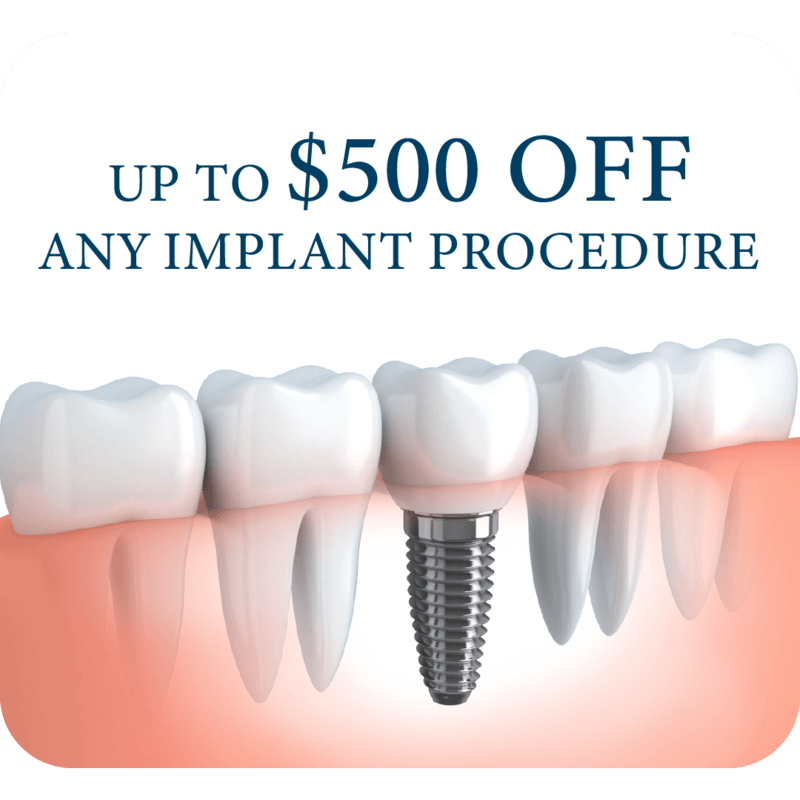 Implant Special